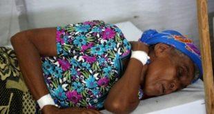 © ا ف ب | إمرأة تعالج من الكوليرا في مدينة الحديدة اليمنية