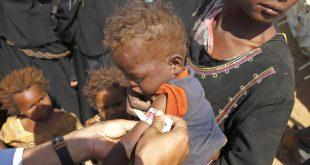 طفل يمني يتلقى العناية الطبية