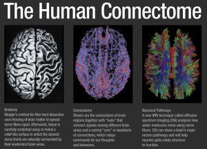 اتصال الدماغ