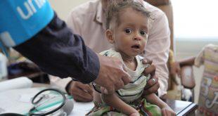 الحرب تسلب المستقبل من أطفال اليمن
